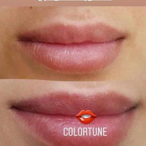 trattamento colortune 3
